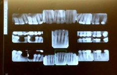 X-rays of teeth