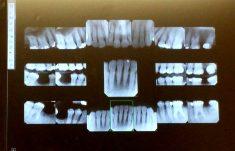 X-rays of teeth